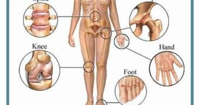 गठिया रोग क्या है