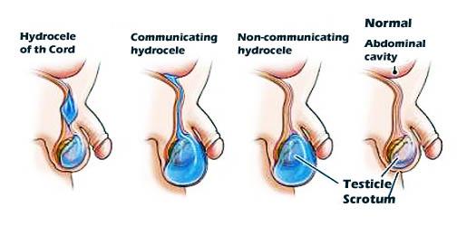 Hydroceles-Hernias-हाइड्रोसील कैसे होता है